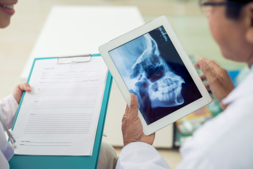 Close-up of doctors examining skull x-ray at Pacific Maxillofacial Center.